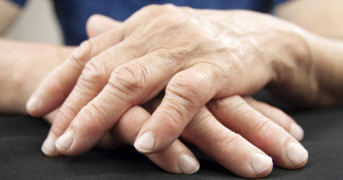 What chiropractic patients want to know about rheumatoid arthritis