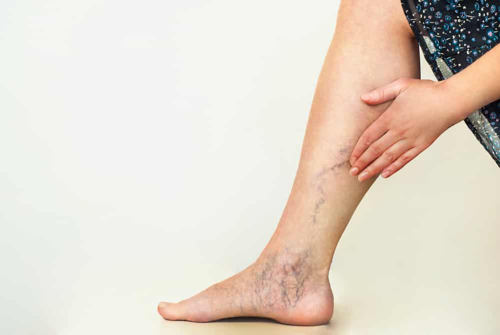 Hidden Signs of Varicose Veins You Might be Missing