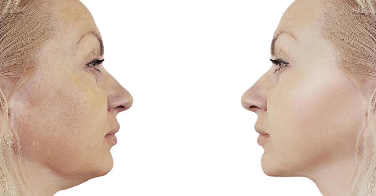 Kybella: the non-invasive way to dissolve a double chin
