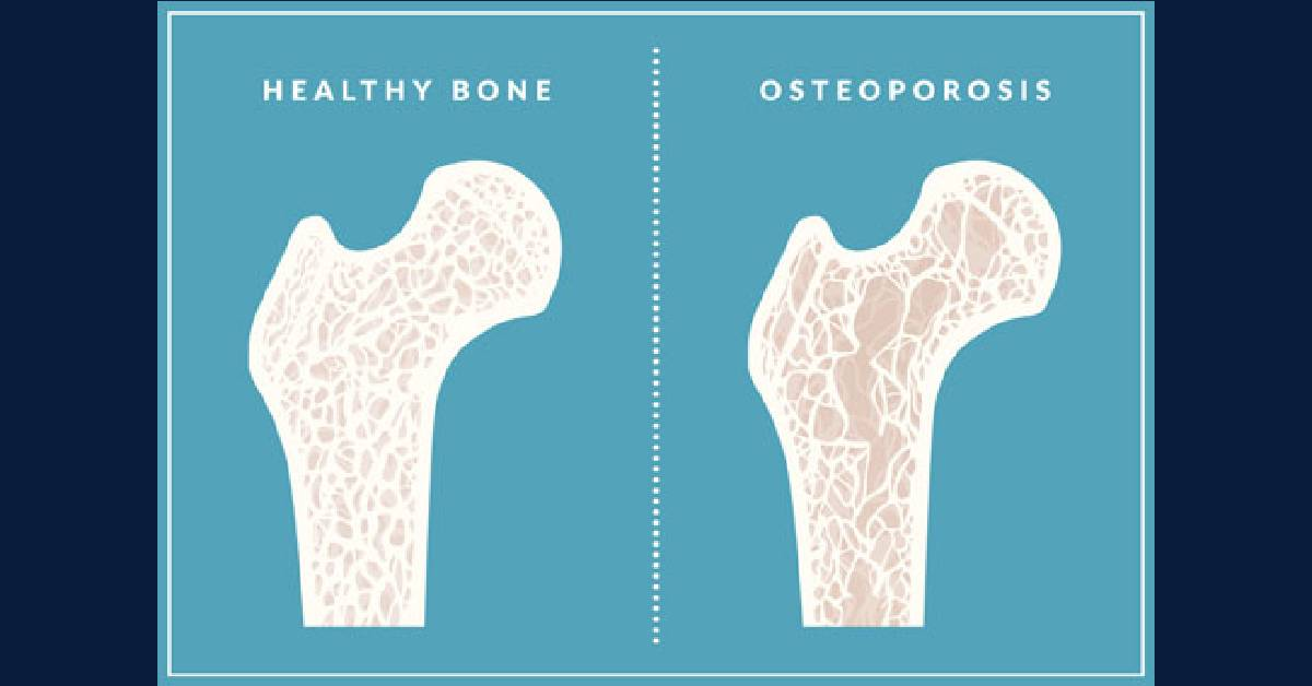 Bone-afide advice from experts, patient on osteoporosis