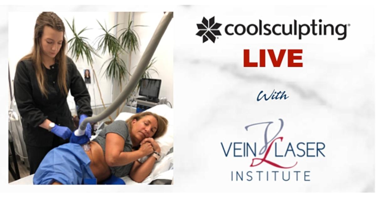 Live CoolSculpting Demonstration on Facebook