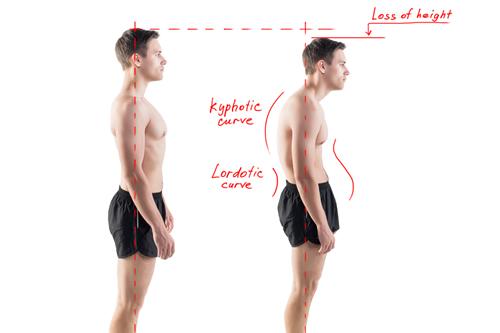 article-087-posture