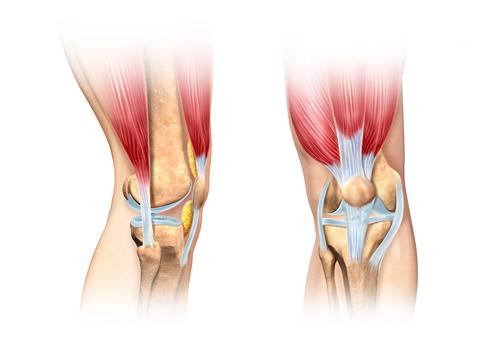 article-116-knock-knee