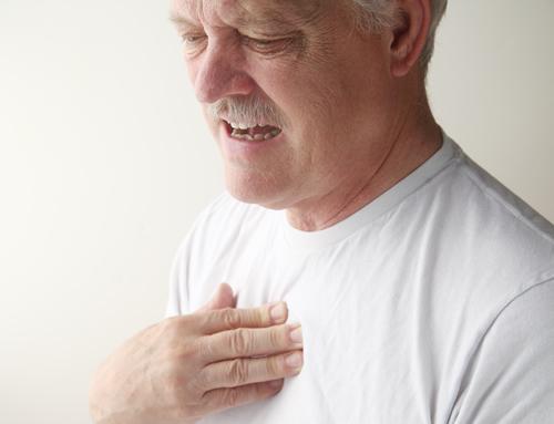 article-117-costochondritis