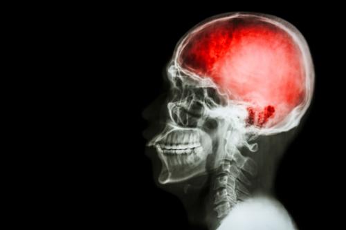 article-161-mild-traumatic-brain-injuries