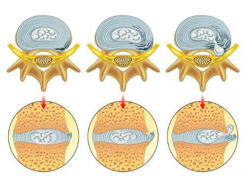 article-206-herniated-disc.jpg