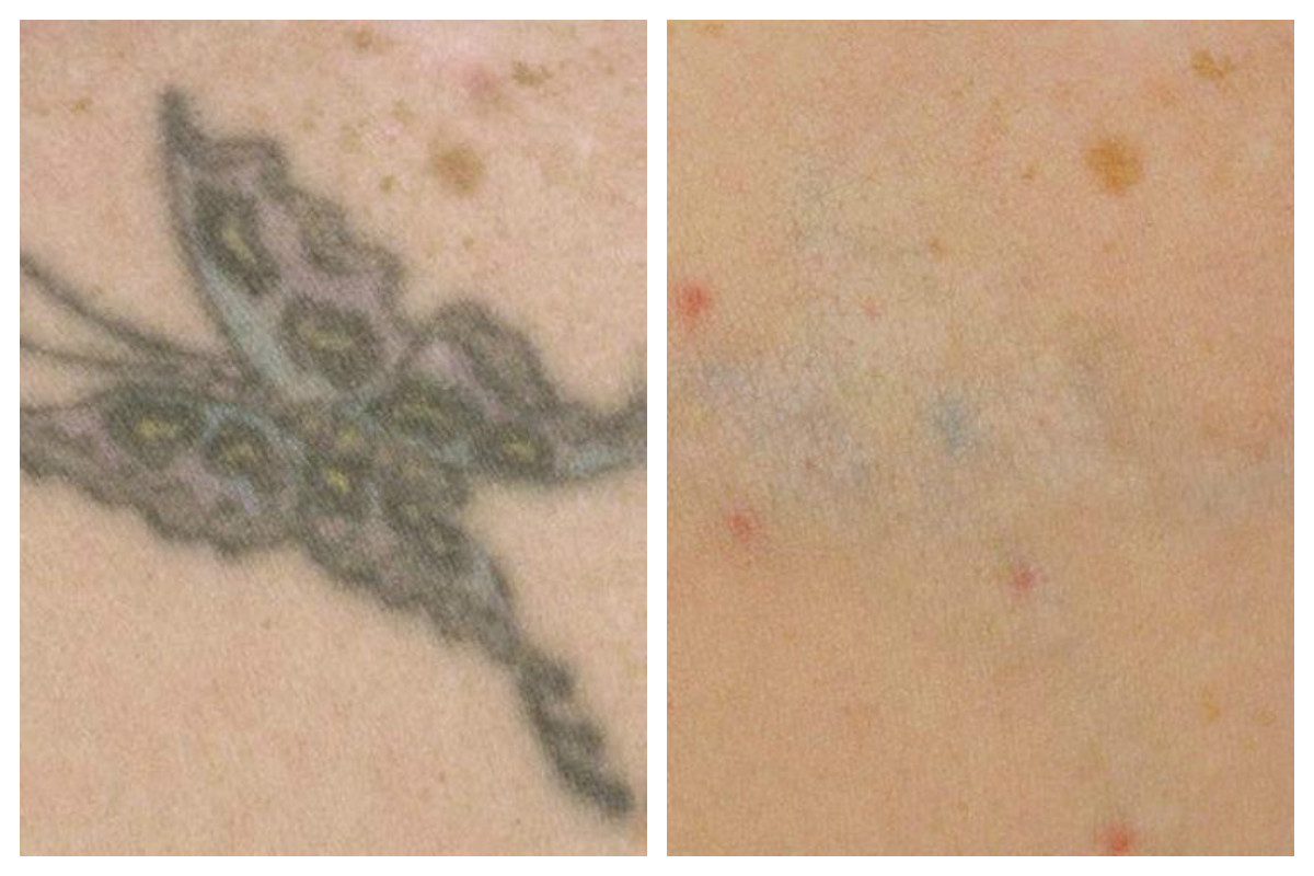 COMHS-Munster-Tattoo-Removal-2017
